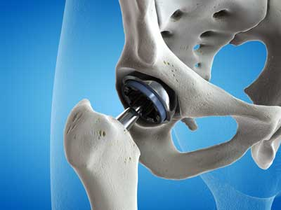 A hip replacement device