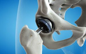 graphic of hip replacement