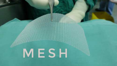 A doctor in a operating room holding a thin layer of hernia mesh with a medical tool.