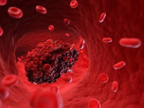 A 3d rendering of a blood clot. An issue that IVC filters are supposed to help prevent.
