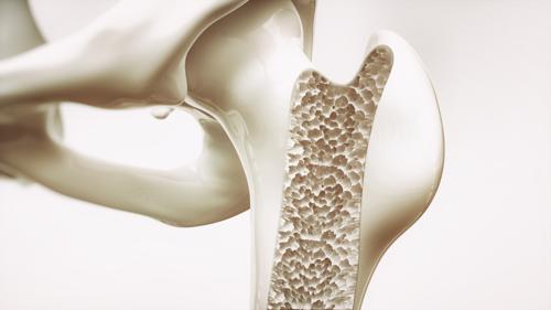 An animated visual of poor bone density.