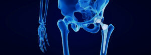 Hip Replacement Lawsuits