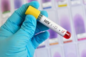 controlling HIV naturally